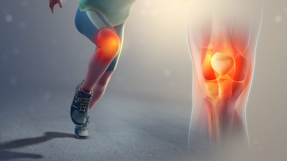What Injuries Can You Get from Running?